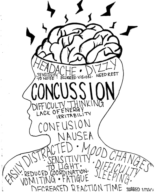 A concussion: What it feels like